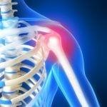 Exercises for a Shoulder Rotator Cuff Problem