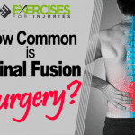 How Common is Spinal Fusion Surgery?
