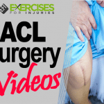 ACL Surgery Videos