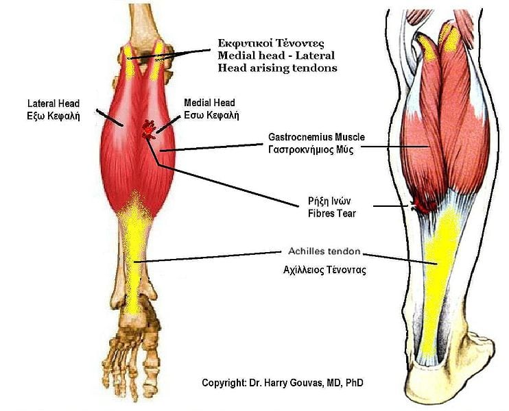 Achilles Tendonitis and Exercises - Exercises For Injuries