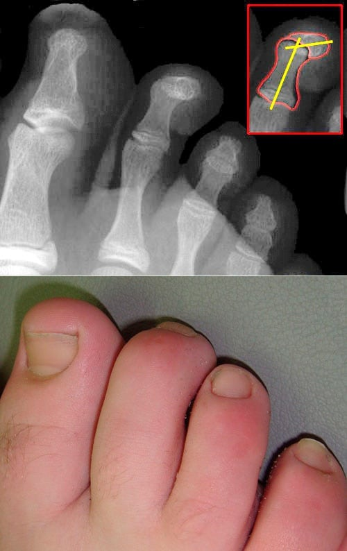Hammerzehe 7 Keys to Your Foot Health