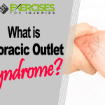 What is Thoracic Outlet Syndrome?