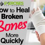 How to Heal Broken Bones More Quickly